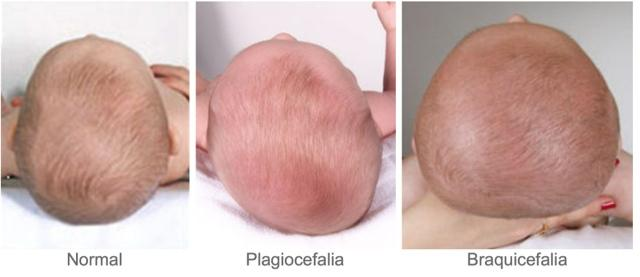 COJIN JANE PLAGIOCEFALIA-81189.7.2-2
